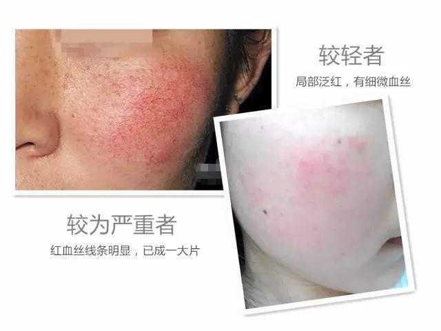 去红血丝的护肤品有哪些_修复红血丝的护肤品排行榜