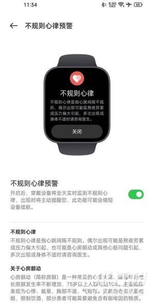OPPO Watch 2 ECG版评测_OPPO Watch 2 ECG版评测表现